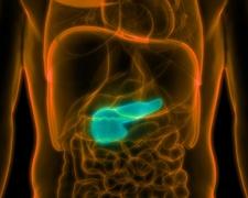 Bauchspeicheldrüsenkrebs: Symptome & Prävention